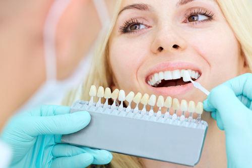 Tandblekning på Tandvårdsteamet.
