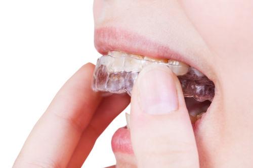 Bettskena mot tandgnissling
